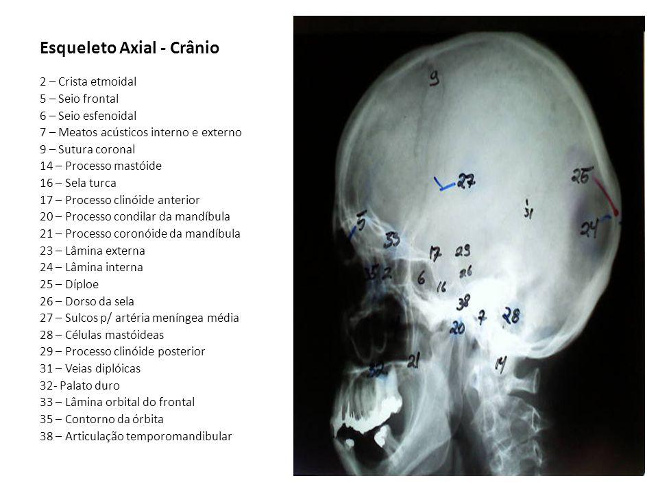 Esqueleto Axial - Crânio 2 – Crista etmoidal 5 – Seio frontal 6 – Seio esfenoidal 7 – Meatos acústicos interno e externo 9 – Sutura coronal 14 – Proce