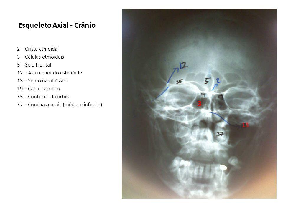 Esqueleto Axial - Crânio 2 – Crista etmoidal 3 – Células etmoidais 5 – Seio frontal 12 – Asa menor do esfenóide 13 – Septo nasal ósseo 19 – Canal caró