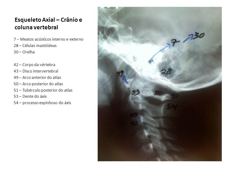 Esqueleto Axial – Crânio e coluna vertebral 7 – Meatos acústicos interno e externo 28 – Células mastóideas 30 – Orelha 42 – Corpo da vértebra 43 – Dis