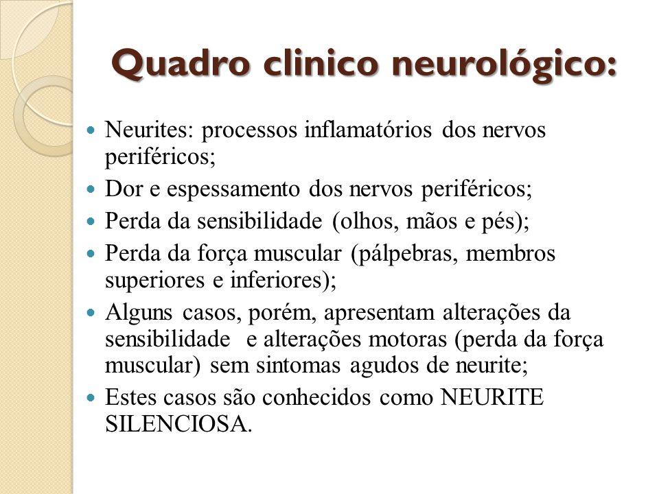 DIAGNÓSTICO Um caso de hanseníase é uma pessoa que apresenta uma ou mais de uma das seguintes características e que requer tratamento: lesão (ões) de pele com alteração de sensibilidade; acometimento de nervo(s) com espessamento neural; baciloscopia positiva.