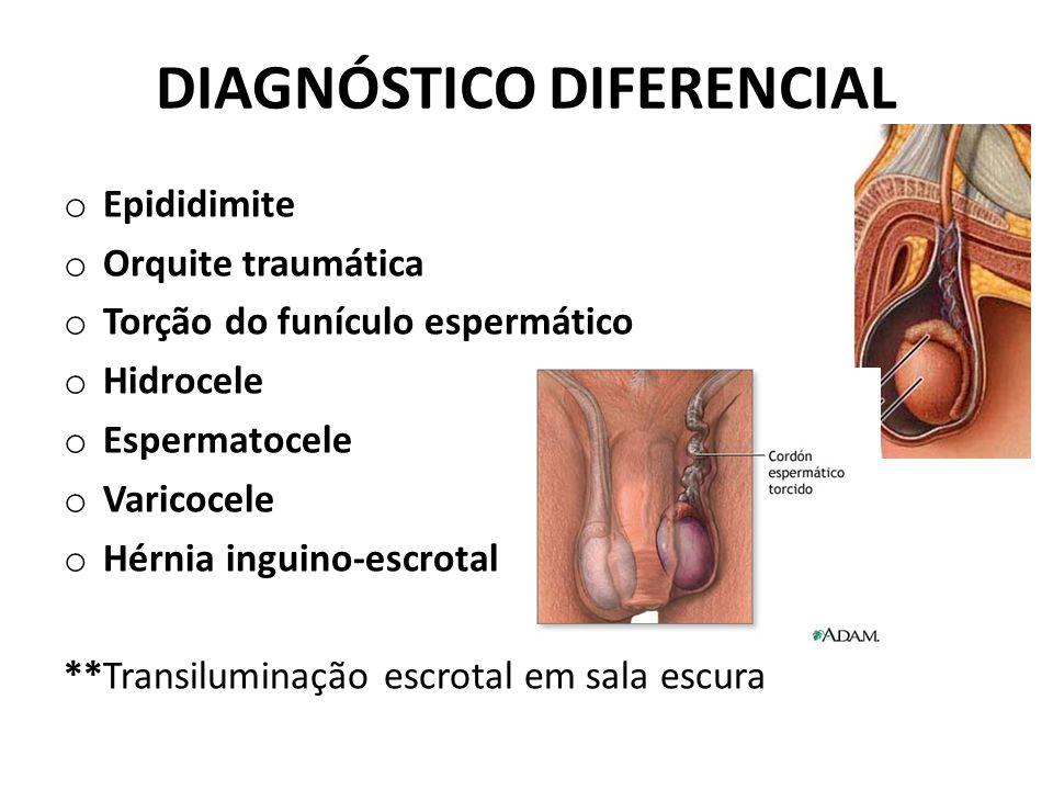 DIAGNÓSTICO DIFERENCIAL o Epididimite o Orquite traumática o Torção do funículo espermático o Hidrocele o Espermatocele o Varicocele o Hérnia inguino-