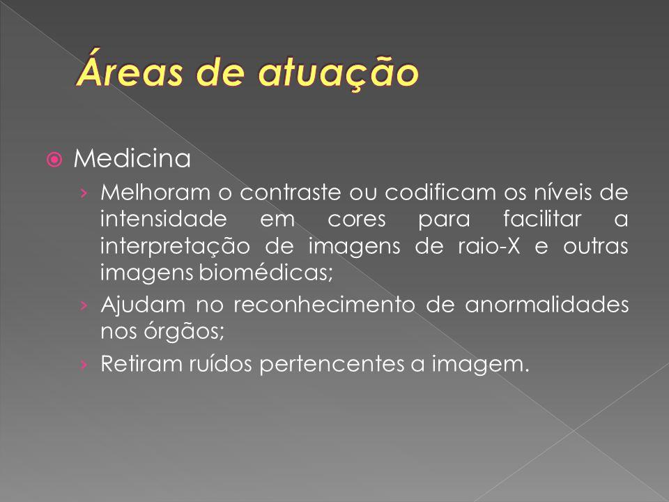  Medicina › Melhoram o contraste ou codificam os níveis de intensidade em cores para facilitar a interpretação de imagens de raio-X e outras imagens