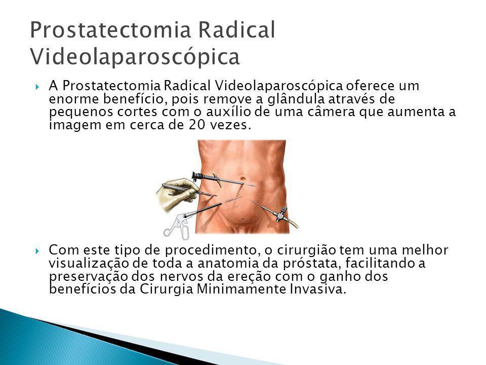  A Prostatectomia Radical Videolaparoscópica oferece um enorme benefício, pois remove a glândula através de pequenos cortes com o auxílio de uma câme