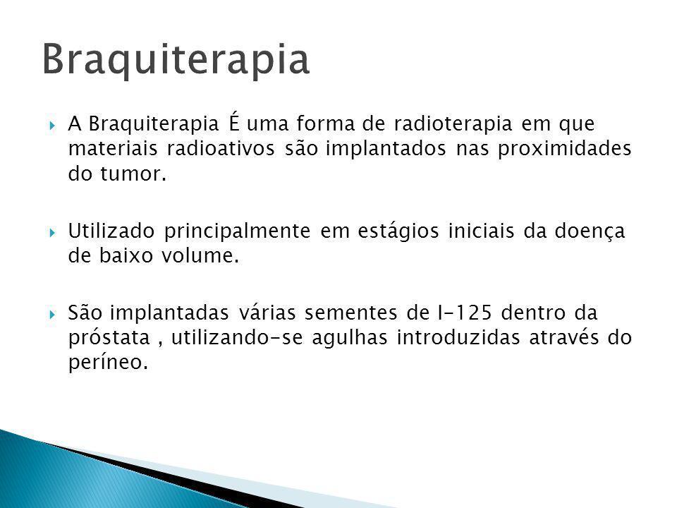  A Braquiterapia É uma forma de radioterapia em que materiais radioativos são implantados nas proximidades do tumor.  Utilizado principalmente em es