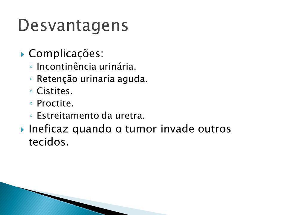  Complicações: ◦ Incontinência urinária. ◦ Retenção urinaria aguda. ◦ Cistites. ◦ Proctite. ◦ Estreitamento da uretra.  Ineficaz quando o tumor inva