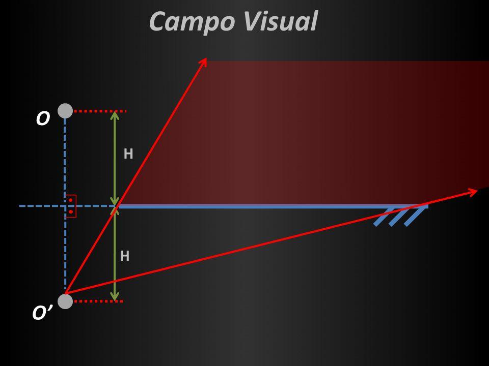 H H Campo Visual O O'