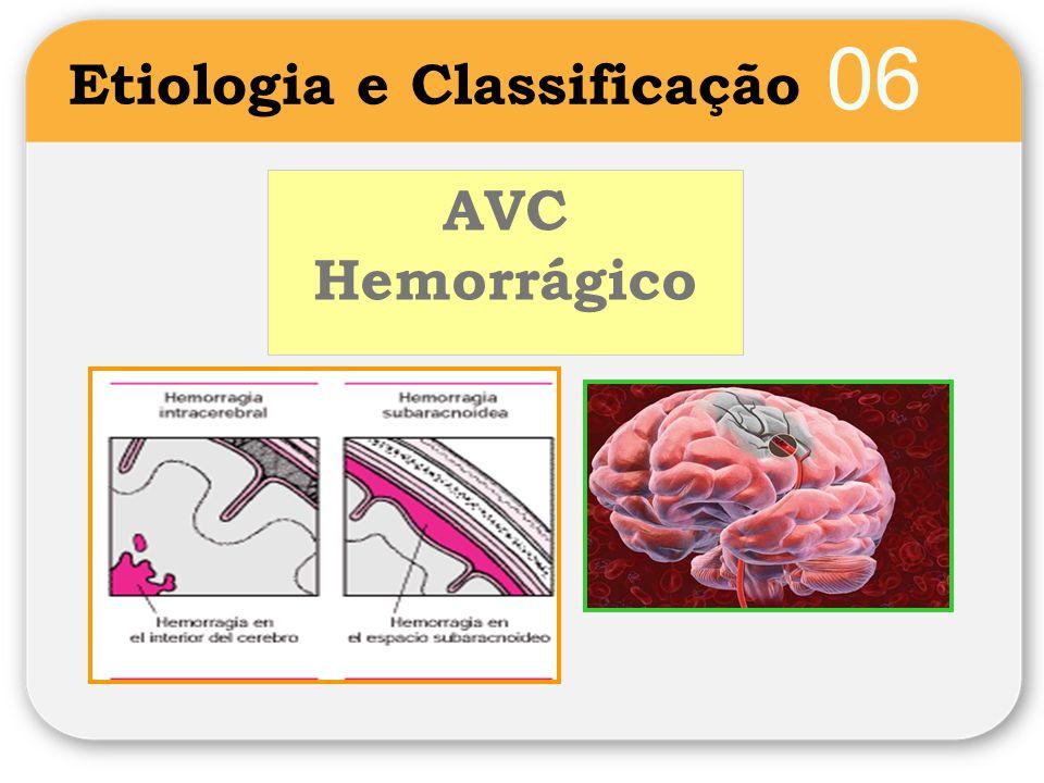 07 Sinais e Sintomas de AVC Variam consoante o território cerebral afectado