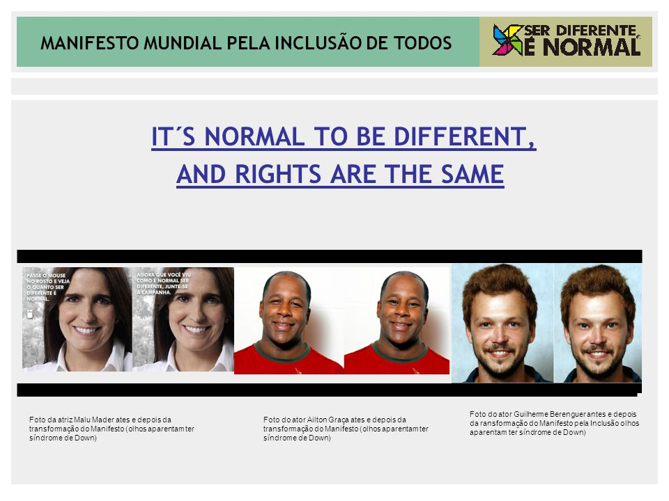 MANIFESTO MUNDIAL PELA INCLUSÃO DE TODOS IT´S NORMAL TO BE DIFFERENT, AND RIGHTS ARE THE SAME Foto da atriz Malu Mader ates e depois da transformação