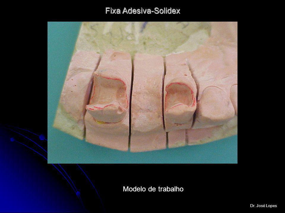 Fixa com estrutura interna em metal e cerômero em solidex Dr.