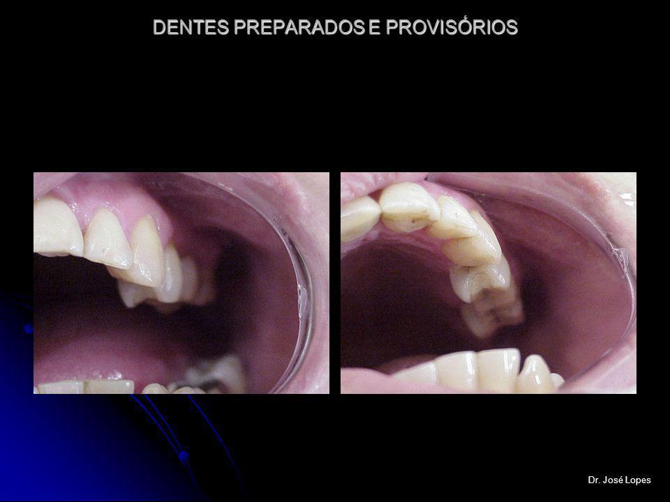 DENTES PREPARADOS E PROVISÓRIOS Dr. José Lopes