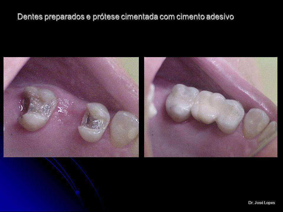 Dentes preparados e prótese cimentada com cimento adesivo Dr. José Lopes