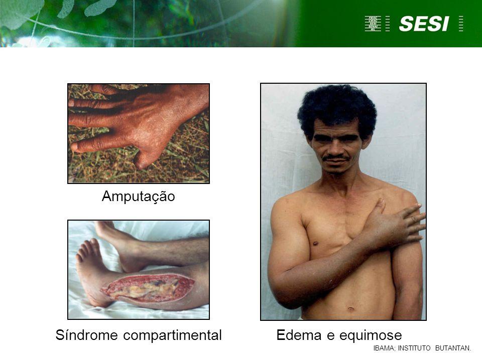Síndrome compartimentalEdema e equimose Amputação IBAMA; INSTITUTO BUTANTAN.