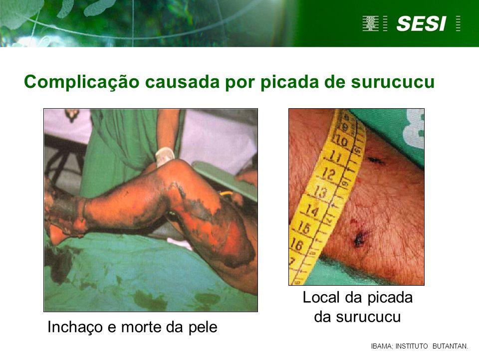 Local da picada da surucucu Complicação causada por picada de surucucu IBAMA; INSTITUTO BUTANTAN. Inchaço e morte da pele