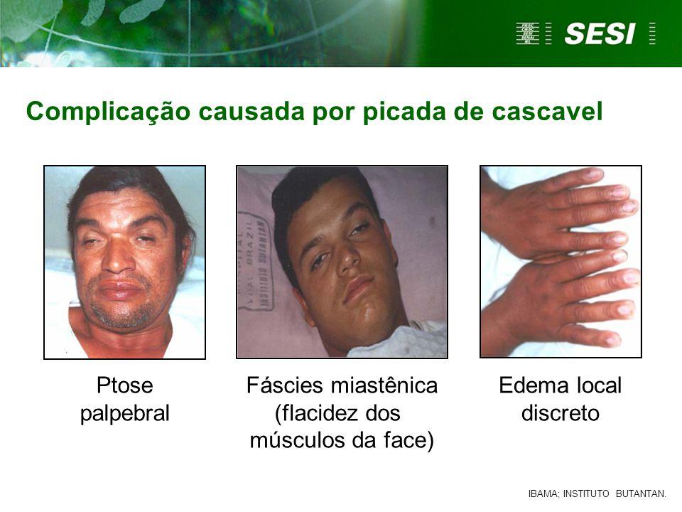 Ptose palpebral Edema local discreto Fáscies miastênica (flacidez dos músculos da face) Complicação causada por picada de cascavel IBAMA; INSTITUTO BUTANTAN.