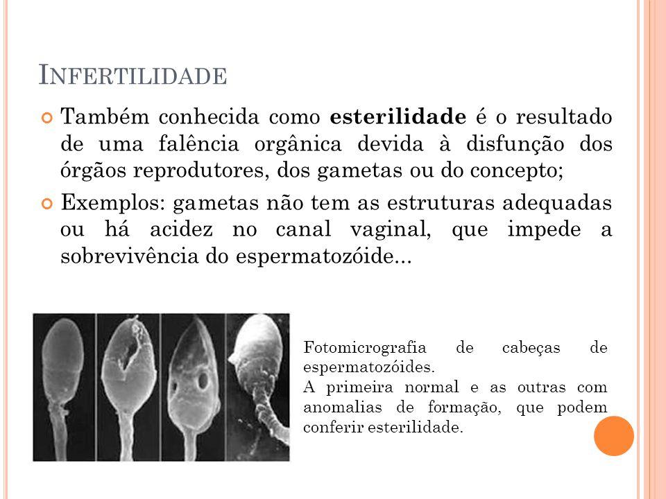 I NFERTILIDADE Também conhecida como esterilidade é o resultado de uma falência orgânica devida à disfunção dos órgãos reprodutores, dos gametas ou do