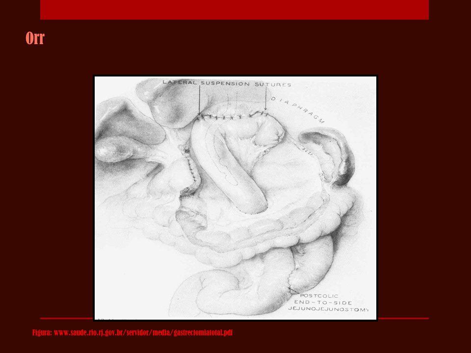 Orr Figura: www.saude.rio.rj.gov.br/servidor/media/gastrectomiatotal.pdf