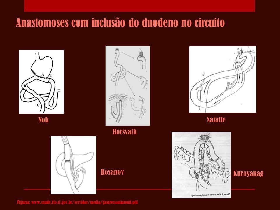 Horsvath Kuroyanag Noh Safatle Anastomoses com inclusão do duodeno no circuito Rosanov Figuras: www.saude.rio.rj.gov.br/servidor/media/gastrectomiatot