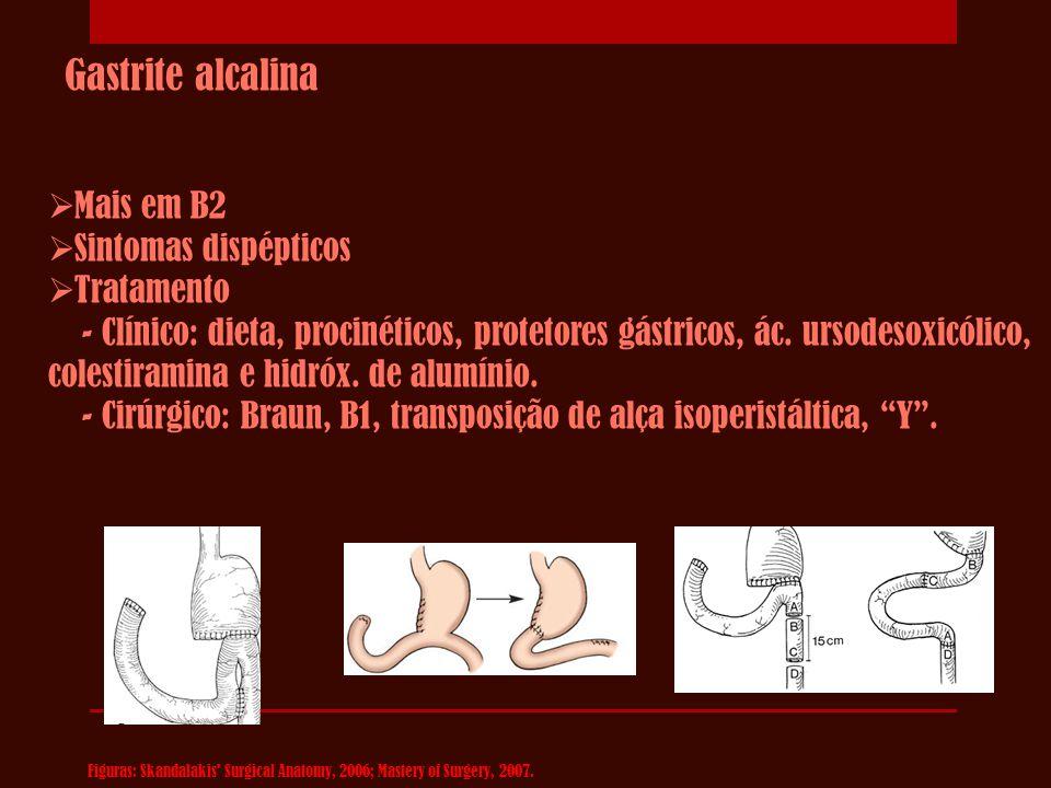 Gastrite alcalina  Mais em B2  Sintomas dispépticos  Tratamento - Clínico: dieta, procinéticos, protetores gástricos, ác. ursodesoxicólico, colesti