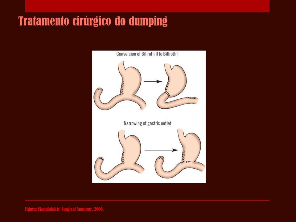 Tratamento cirúrgico do dumping Figura: Skandalakis' Surgical Anatomy, 2006.