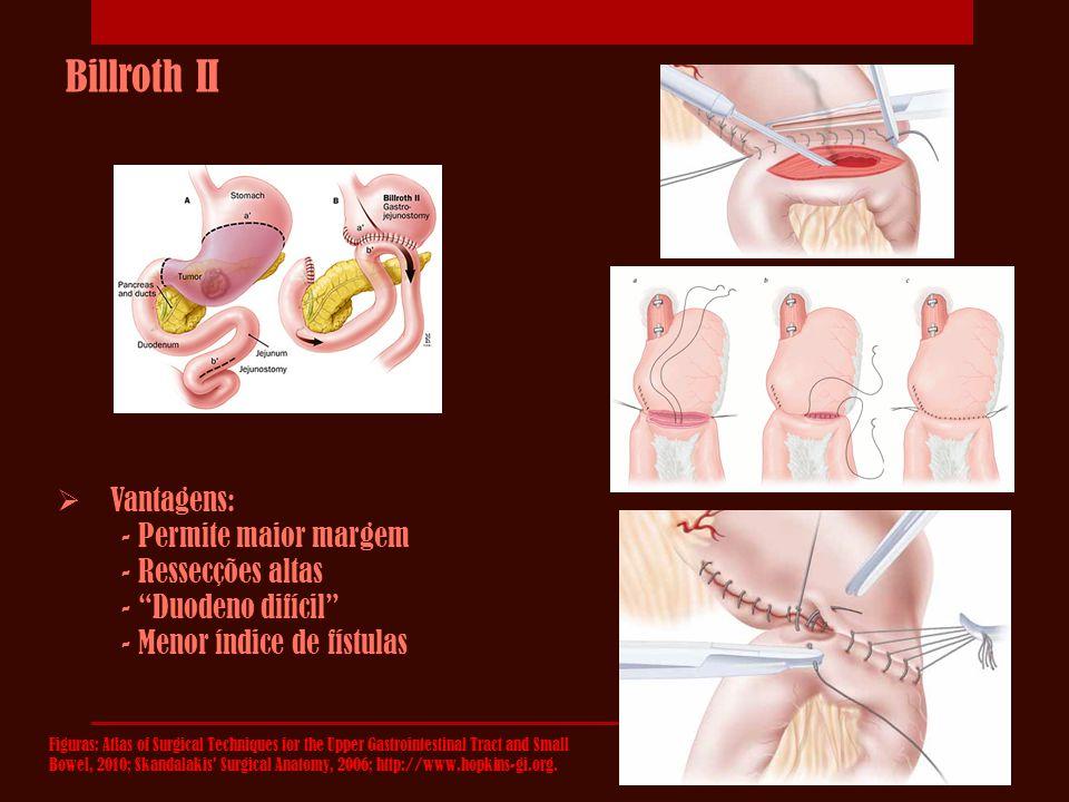"""Billroth II  Vantagens: - Permite maior margem - Ressecções altas - """"Duodeno difícil"""" - Menor índice de fístulas Figuras: Atlas of Surgical Technique"""