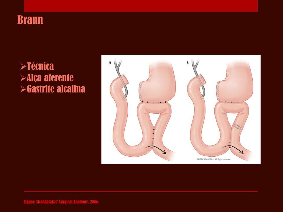 Y-Roux Figura: Skandalakis Surgical Anatomy, 2006; http://www.hopkins-gi.org.