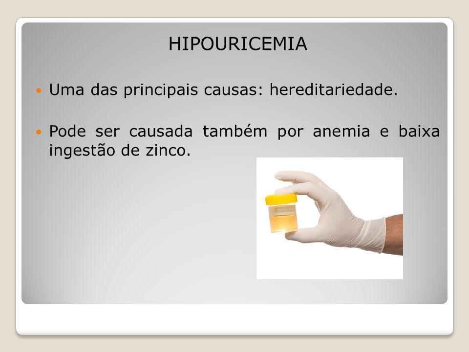 HIPOURICEMIA Uma das principais causas: hereditariedade. Pode ser causada também por anemia e baixa ingestão de zinco.