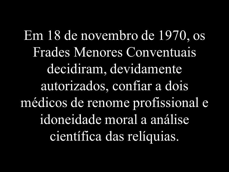 Em 18 de novembro de 1970, os Frades Menores Conventuais decidiram, devidamente autorizados, confiar a dois médicos de renome profissional e idoneidade moral a análise científica das relíquias.