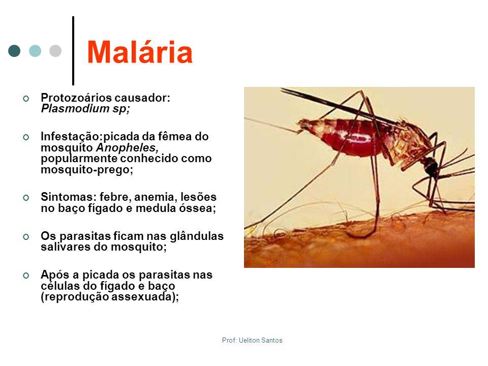 Malária Protozoários causador: Plasmodium sp; Infestação:picada da fêmea do mosquito Anopheles, popularmente conhecido como mosquito-prego; Sintomas: