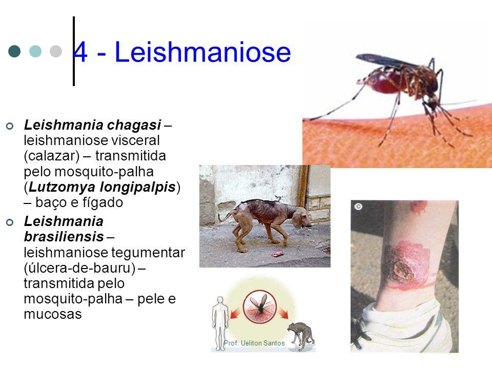 4 - Leishmaniose Leishmania chagasi – leishmaniose visceral (calazar) – transmitida pelo mosquito-palha (Lutzomya longipalpis) – baço e fígado Leishma