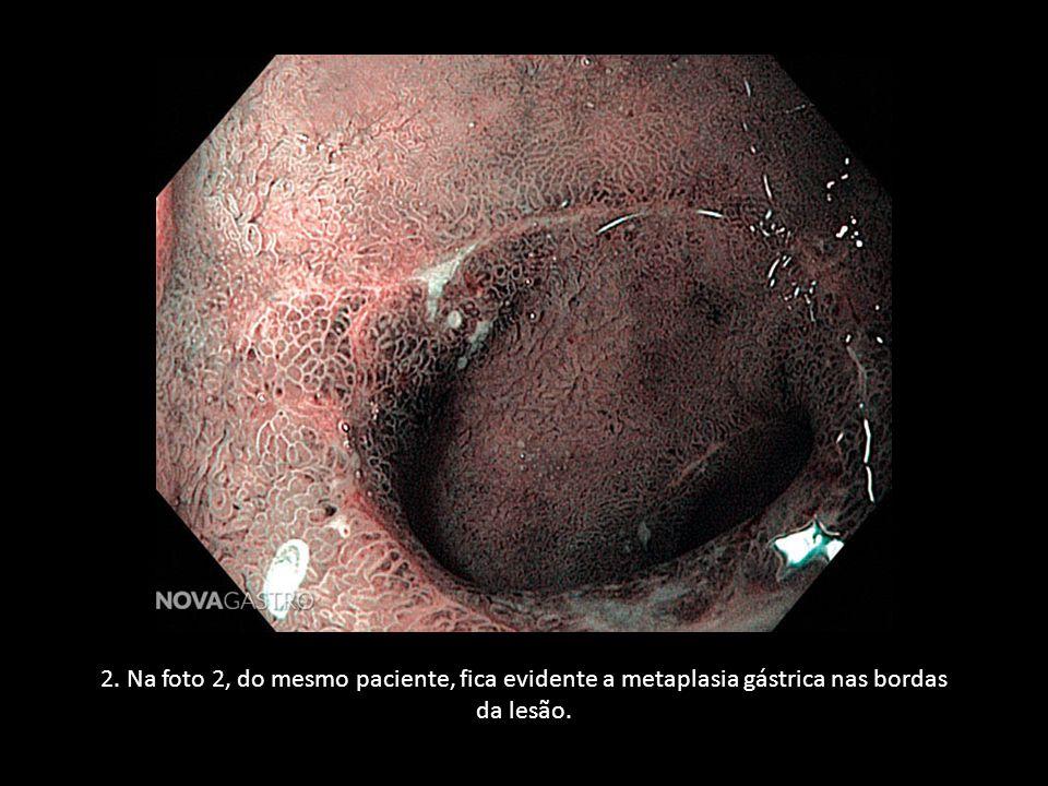 3. Lesão de aspecto morfológico pouco comum (nesses casos deve-se suspeitar de AINEs e AAS).