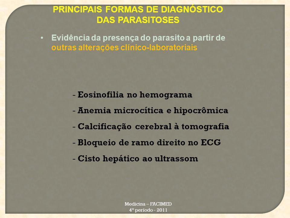 PRINCIPAIS FORMAS DE DIAGNÓSTICO DAS PARASITOSES Medicina – FACIMED 4º período - 2011 Evidência da presença do parasito a partir de outras alterações