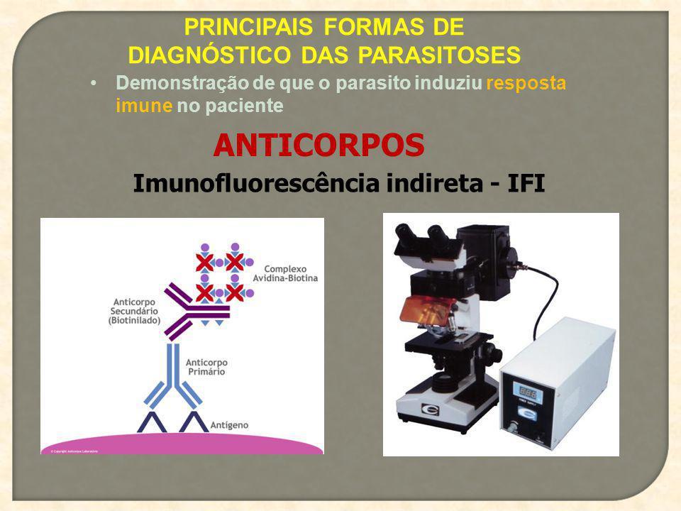 PRINCIPAIS FORMAS DE DIAGNÓSTICO DAS PARASITOSES Demonstração de que o parasito induziu resposta imune no paciente ANTICORPOS Imunofluorescência indir