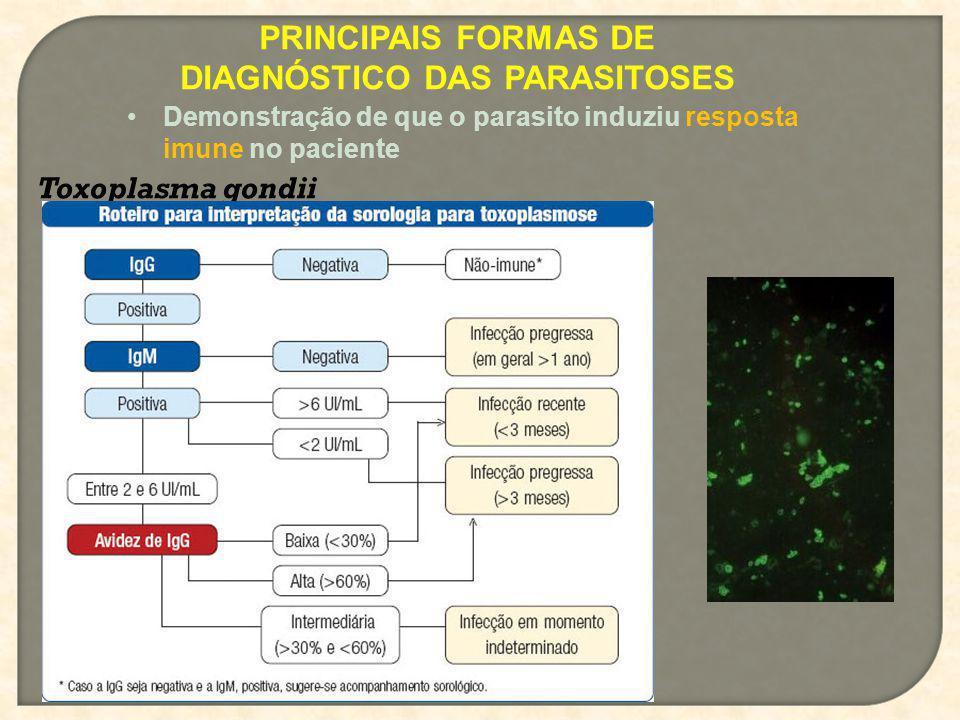 PRINCIPAIS FORMAS DE DIAGNÓSTICO DAS PARASITOSES Demonstração de que o parasito induziu resposta imune no paciente Toxoplasma gondii