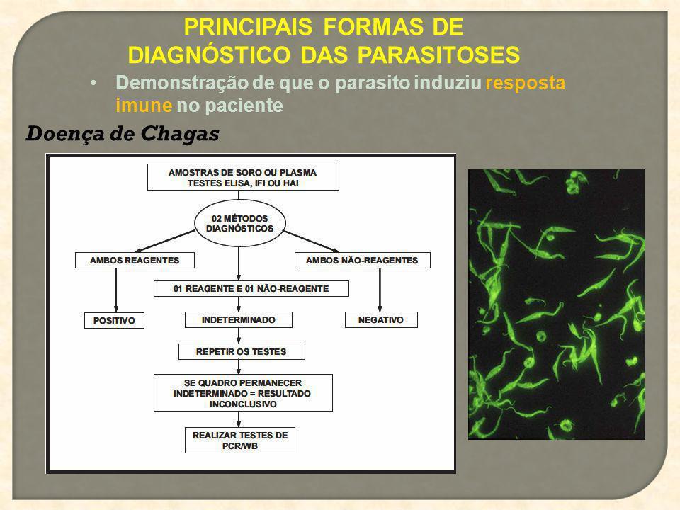 PRINCIPAIS FORMAS DE DIAGNÓSTICO DAS PARASITOSES Demonstração de que o parasito induziu resposta imune no paciente Doença de Chagas