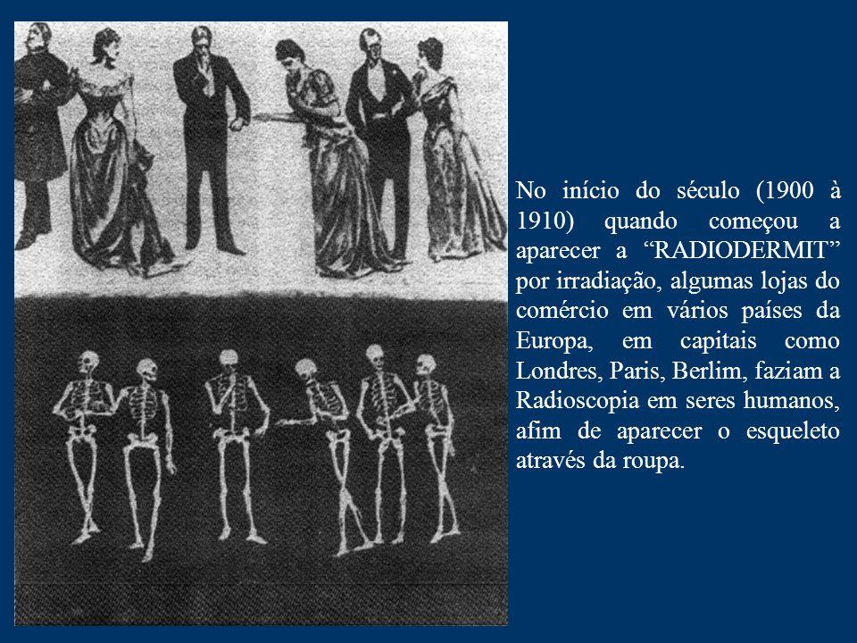 """No início do século (1900 à 1910) quando começou a aparecer a """"RADIODERMIT"""" por irradiação, algumas lojas do comércio em vários países da Europa, em c"""
