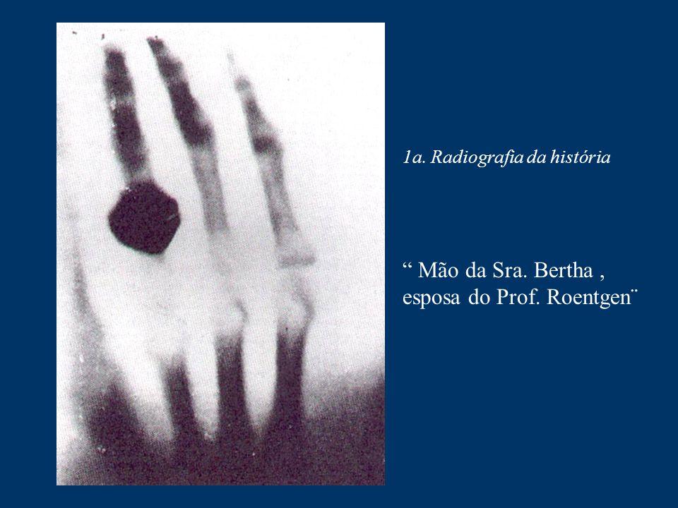 """1a. Radiografia da história """" Mão da Sra. Bertha, esposa do Prof. Roentgen¨"""