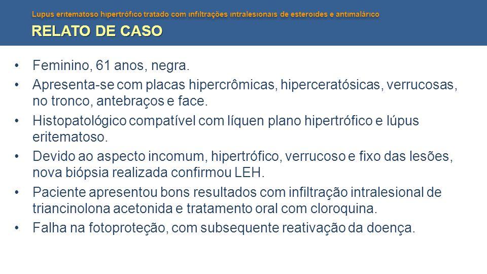 Lupus erıtematoso hıpertrófıco tratado com ınfıltrações ıntralesıonaıs de esteroıdes e antımalárıco RELATO DE CASO Feminino, 61 anos, negra. Apresenta