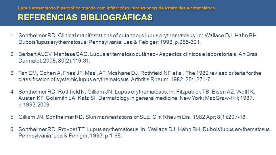 Lupus erıtematoso hıpertrófıco tratado com ınfıltrações ıntralesıonaıs de esteroıdes e antımalárıco REFERÊNCIAS BIBLIOGRÁFICAS 1.Sontheimer RD. Clinic