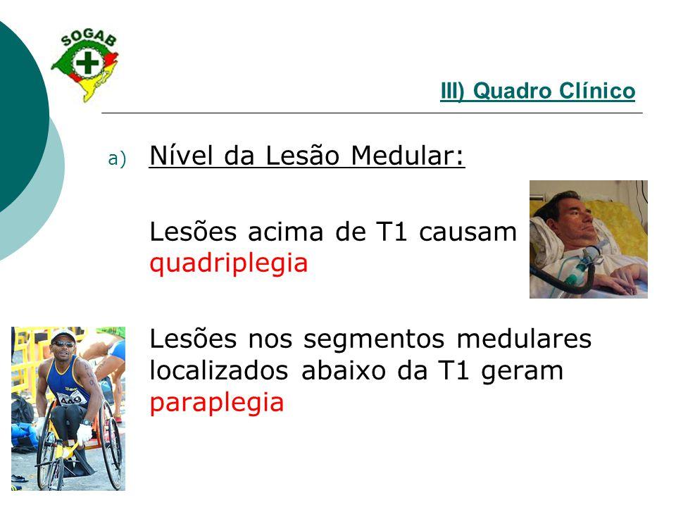 III) Quadro Clínico a) Nível da Lesão Medular: Lesões acima de T1 causam quadriplegia Lesões nos segmentos medulares localizados abaixo da T1 geram pa