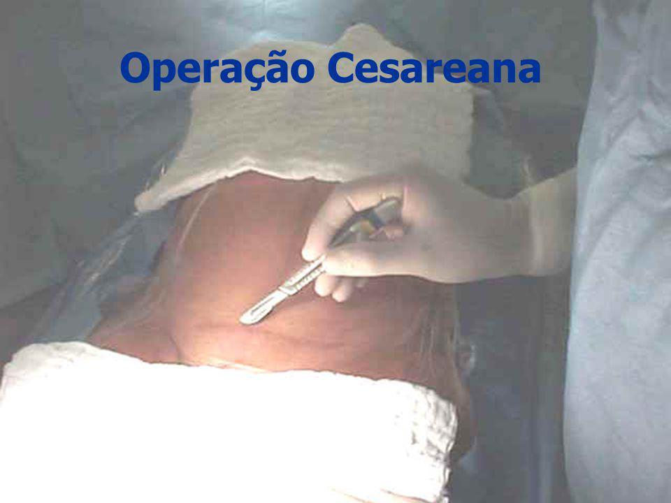 Operação Cesareana