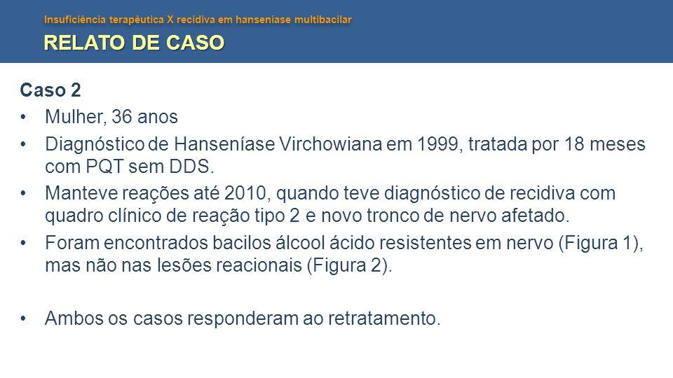 Insuficiência terapêutica X recidiva em hanseníase multibacilar RELATO DE CASO Caso 2 Mulher, 36 anos Diagnóstico de Hanseníase Virchowiana em 1999, tratada por 18 meses com PQT sem DDS.