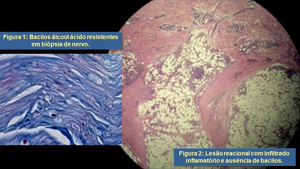 Figura 1: Bacilos álcool ácido resistentes em biópsia de nervo. Figura 2: Lesão reacional com infiltrado inflamatório e ausência de bacilos.