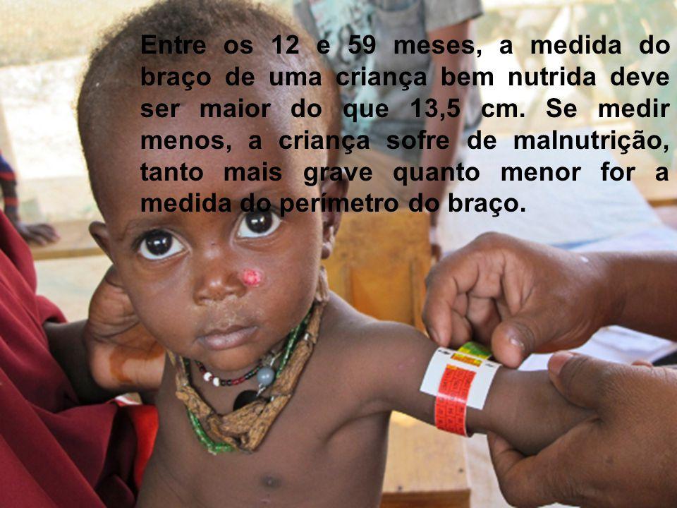 Entre os 12 e 59 meses, a medida do braço de uma criança bem nutrida deve ser maior do que 13,5 cm. Se medir menos, a criança sofre de malnutrição, ta