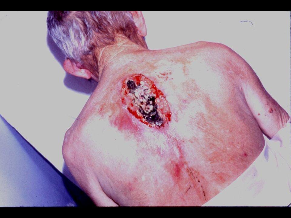 Enfisema Pulmonar DiabetesCâncerVaso-contrição Impotência Física e Sexual DesânimoDemência Cãimbras e Outras