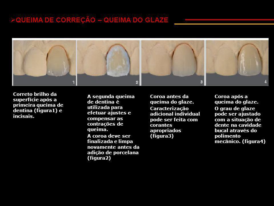  QUEIMA DE CORREÇÃO – QUEIMA DO GLAZE Correto brilho da superfície após a primeira queima de dentina (figura1) e incisais.