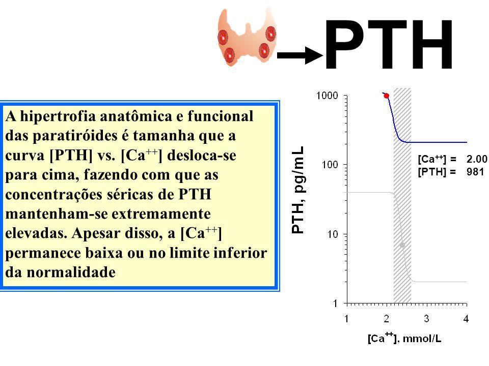 PTH A hipertrofia anatômica e funcional das paratiróides é tamanha que a curva [PTH] vs. [Ca ++ ] desloca-se para cima, fazendo com que as concentraçõ