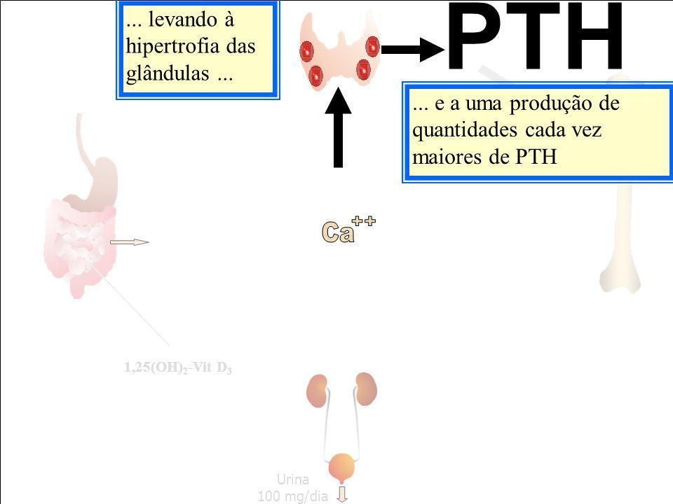 Urina 100 mg/dia... e a uma produção de quantidades cada vez maiores de PTH PTH... levando à hipertrofia das glândulas... 1,25(OH) 2 -Vit D 3
