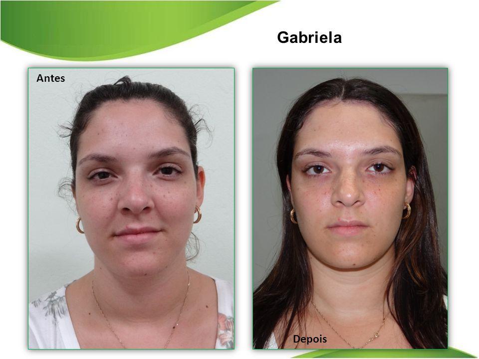 Gabriela Depois Antes