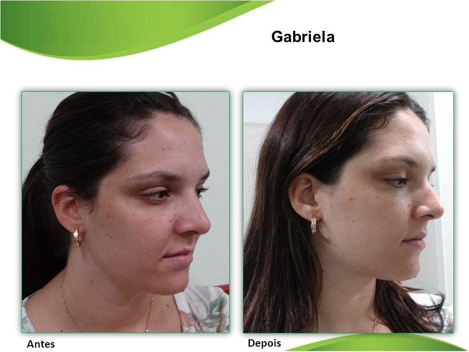 Depois Antes Gabriela