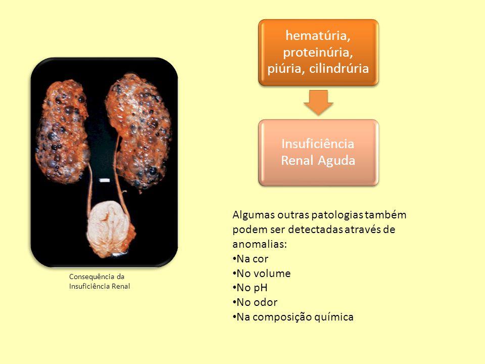 hematúria, proteinúria, piúria, cilindrúria Insuficiência Renal Aguda Algumas outras patologias também podem ser detectadas através de anomalias: Na c